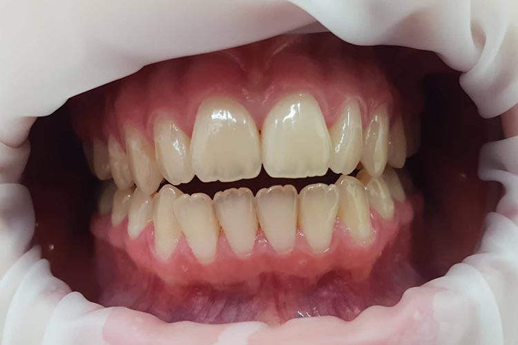 Zubní ordinace Brno promena1a