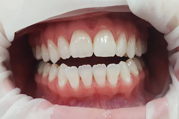 Zubní ordinace Brno promena1b