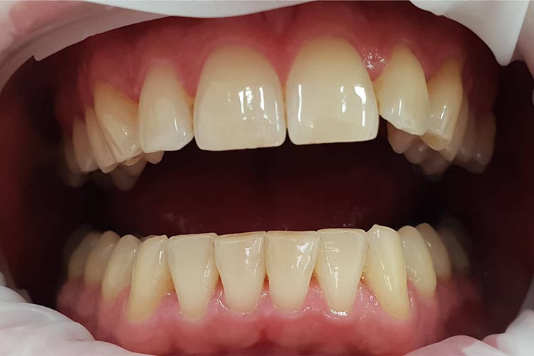 Zubní ordinace Brno promena2a