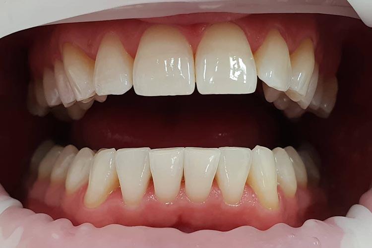 Zubní ordinace Brno promena2b