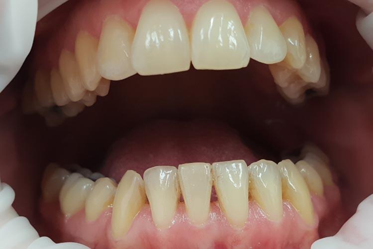 Zubní ordinace Brno promena3a
