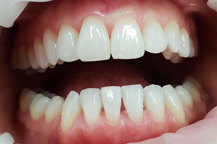 Zubní ordinace Brno promena3b