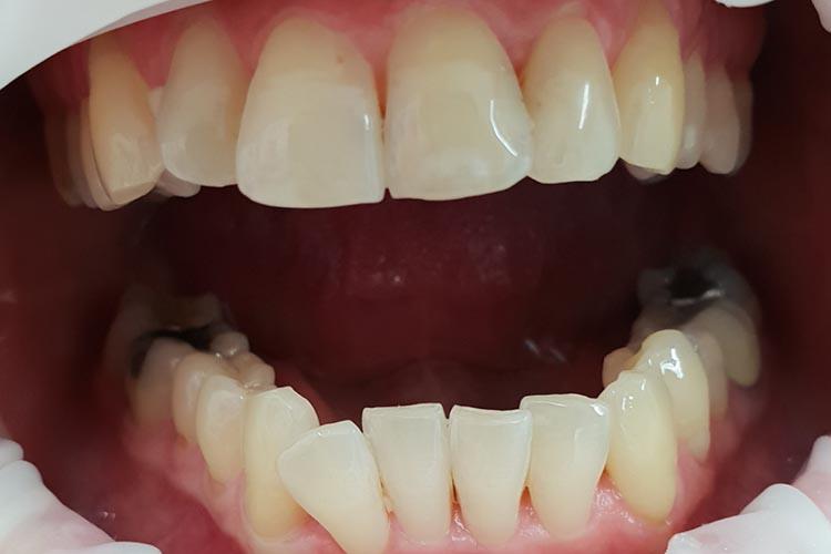 Zubní ordinace Brno promena4a