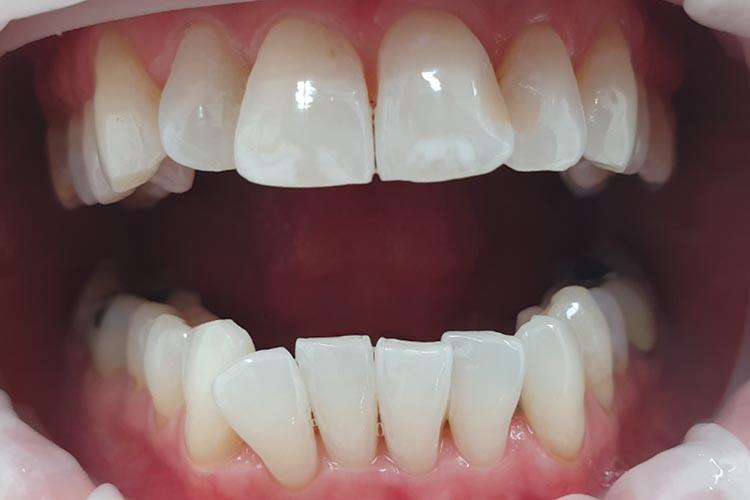 Zubní ordinace Brno promena4b