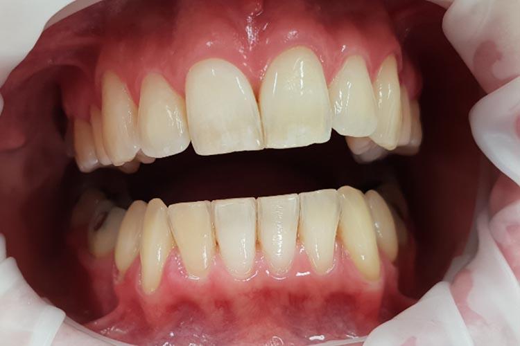 Zubní ordinace Brno promena5a