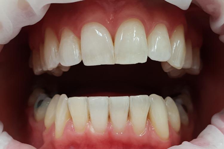 Zubní ordinace Brno promena5b